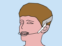 Illustration of a young man wearing orthodontic headgear