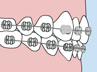 Illustration of a loose orthodontic appliance