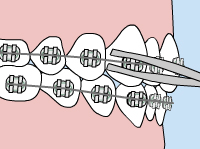 Illustration of metal braces with a loose wire