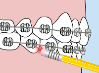 Illustration of a patient using a pencil to fix the wire on their braces